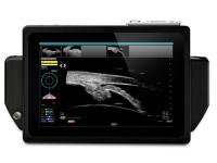 Офтальмологическая ультразвуковая система Sonomed VuPad